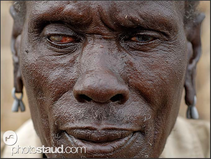 Blind man of El Molo - drinking water from Lake Turkana brings many health problems to El Molo population, Northern Kenya